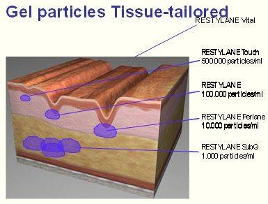 דוגמא לריכוזים שונים של חומצה היאלורונית ומיקום ההזרקה (ככל שהחומר סמיך יותר, יש להזריקו עמוק יותר)
